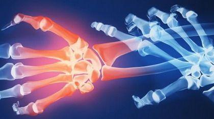 reumatoeidis-arthritida
