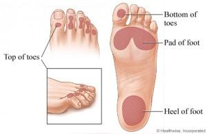 διαβητικό πόδι1