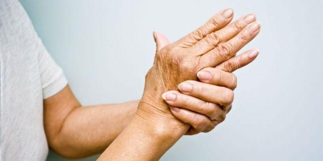 arthtitis