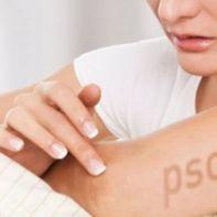 psoriasis-2
